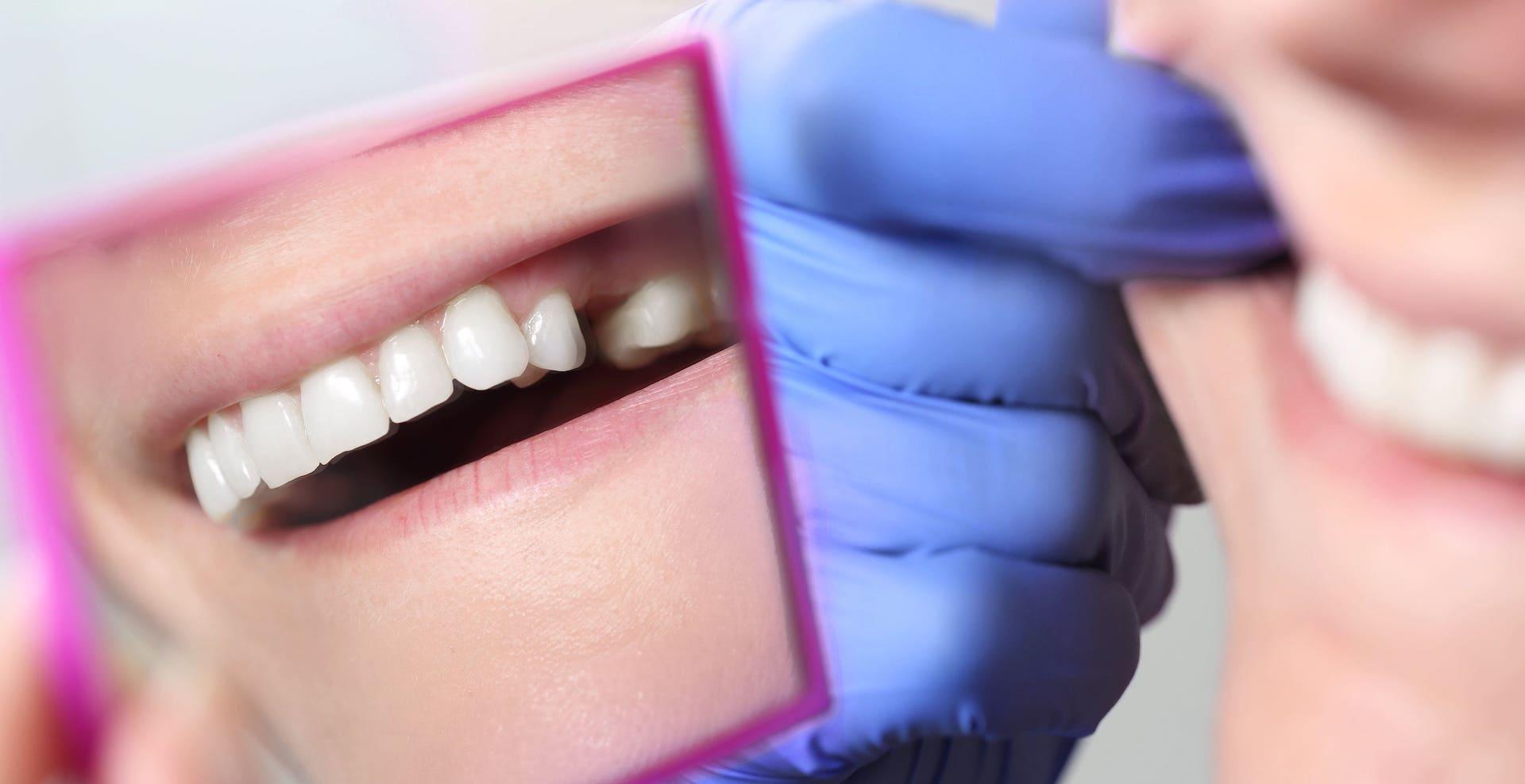 Deutscher Zahnversicherungs-Service Entscheidungshilfen Umgang von Zahnzusatzversicherungen mit fehlenden Zähnen