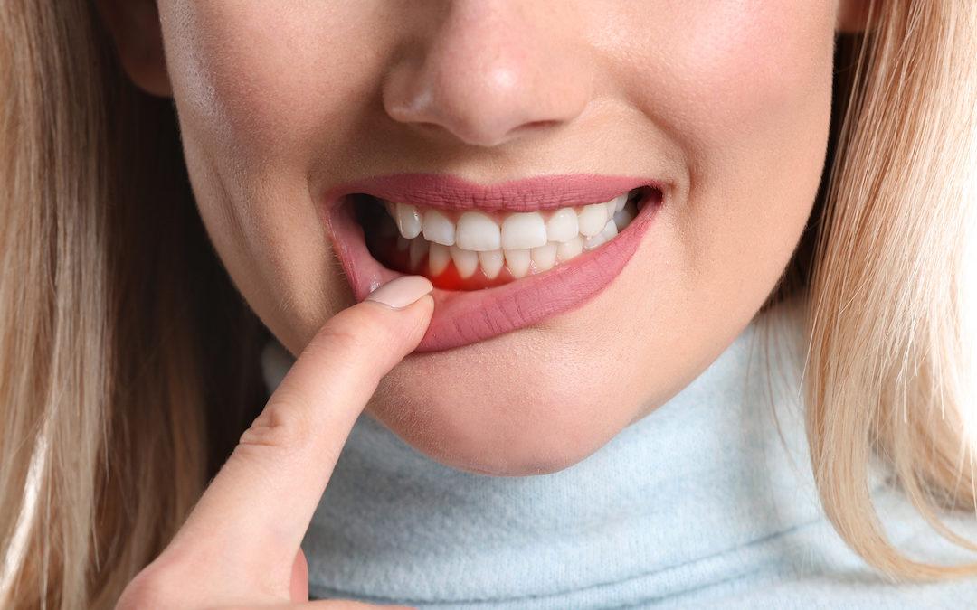 Patienten mit schweren Herzerkrankungen zeigen parodontalen Behandlungsbedarf